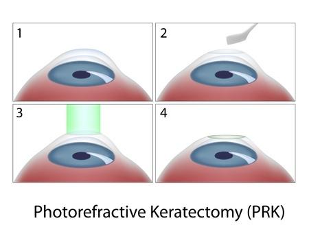 Photorefractive Keratectomy (PRK)