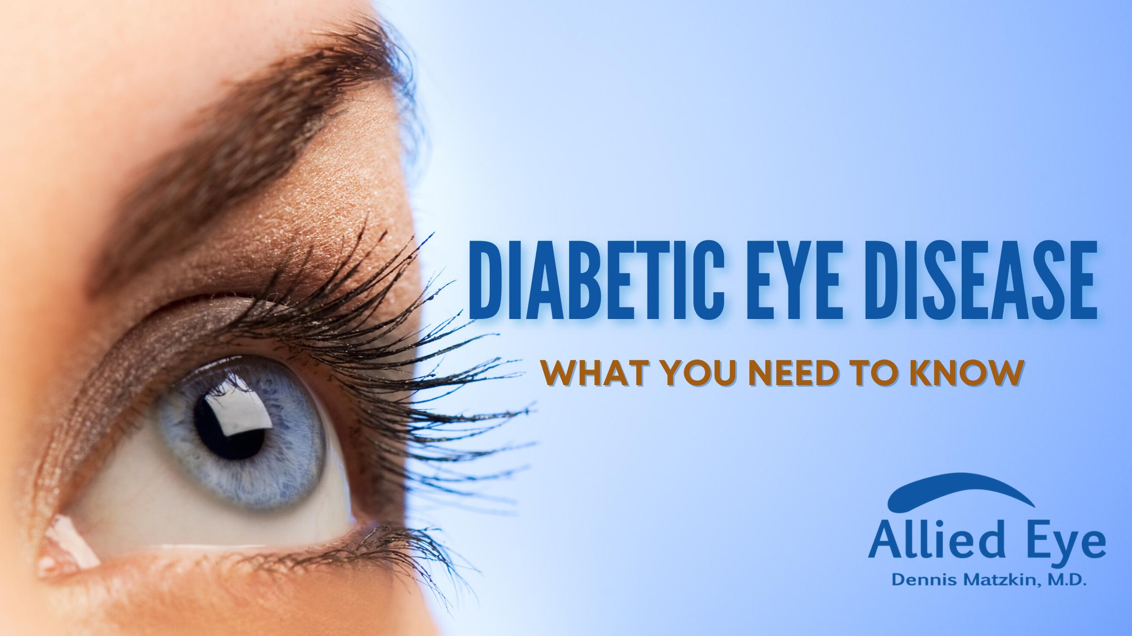 Diabetic Eye Disease Month Blog Graphic