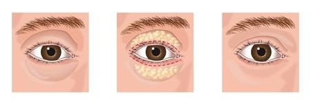 blepharoplasty example images