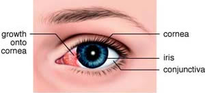 Example of a pterygium