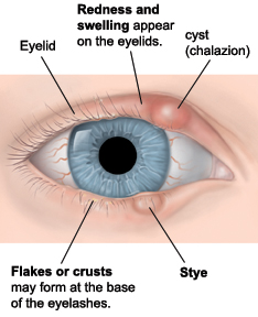 Example of a stye