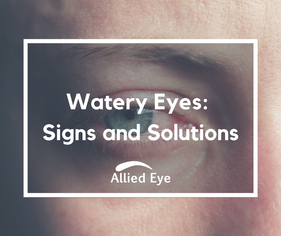 Watery Eyes July 2020 Blog Graphic